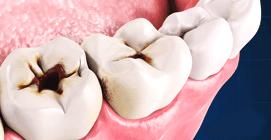 Удаление зубов Краснодар