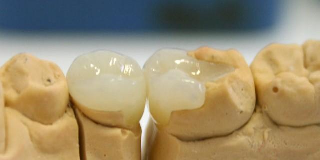 Вкладки на зубы Краснодар